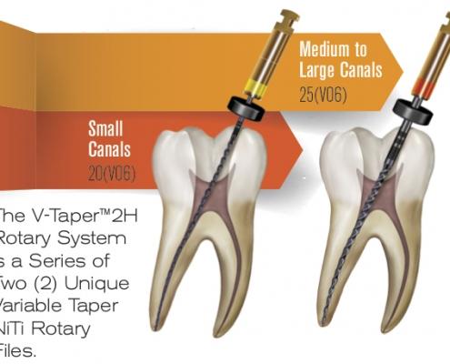 Wurzelkanalaufbereitung mit Endodontie Instrumenten